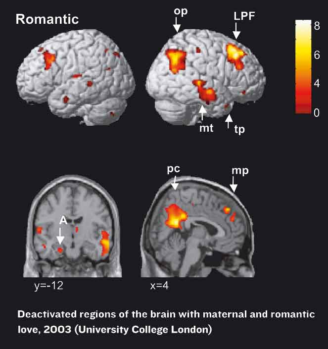 brain scan showing deactivated parts of the brain when people are in love